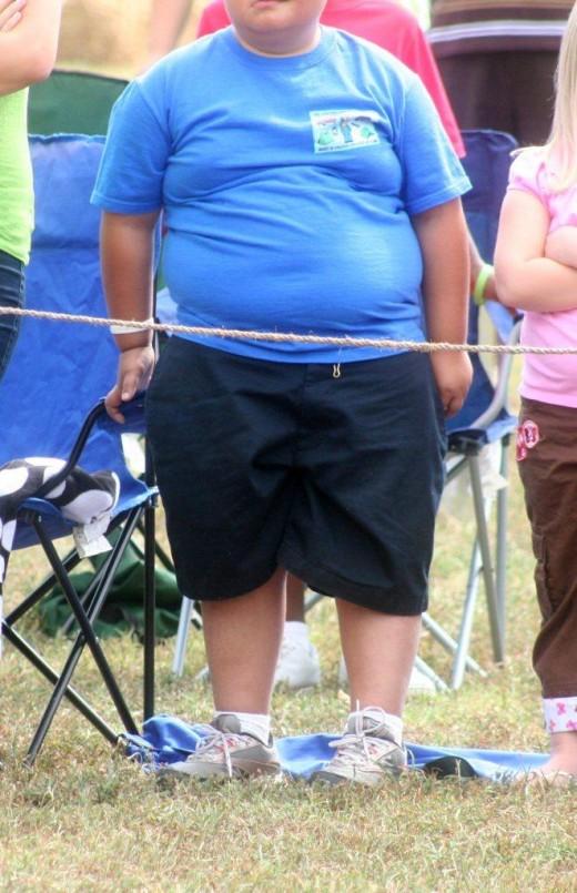 Лечение ожирения: хирургические, медикаментозные и психологические методы