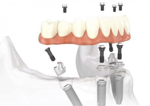 Имплантация зубов All-on-4 – новая улыбка в стоматологическом центре «Зууб»