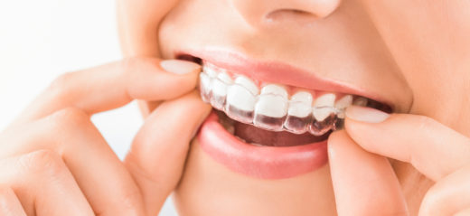 Исправление зубного прикуса: советы ортодонта